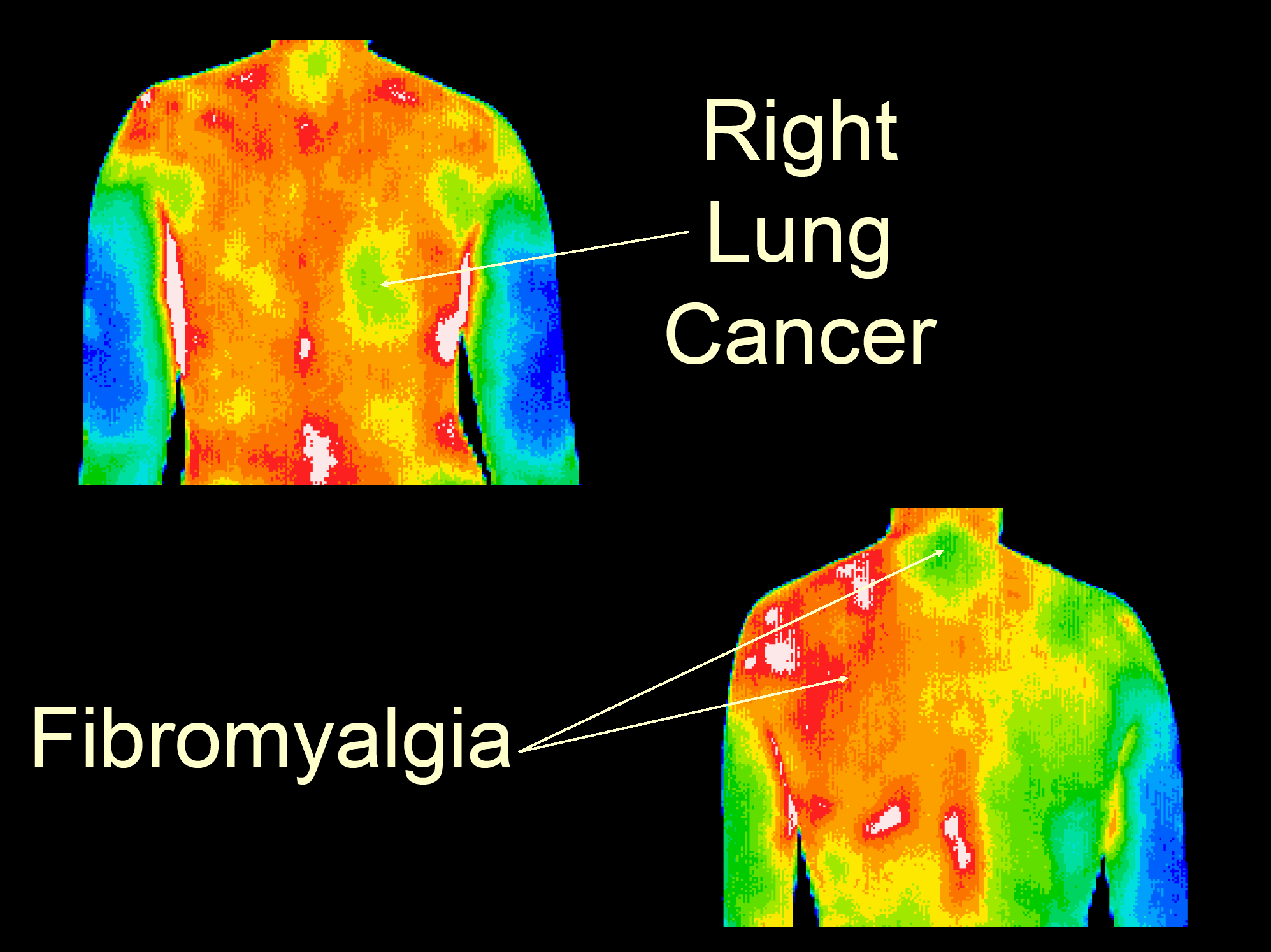1.Right Lung Cancer