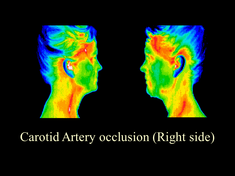 10 Carotid Artery Occlusion Rt. side