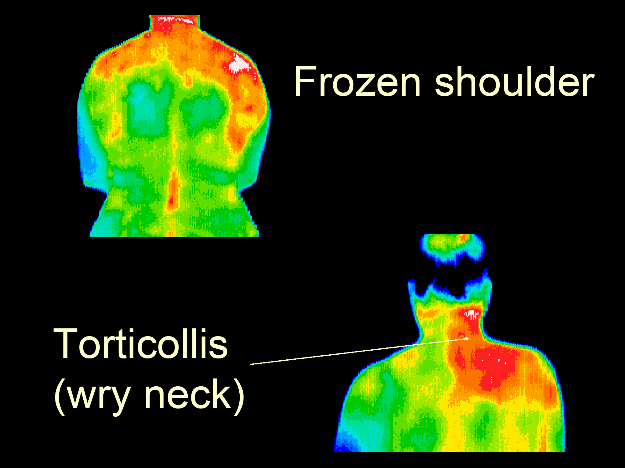 26 Torticollis, frozen shoulder