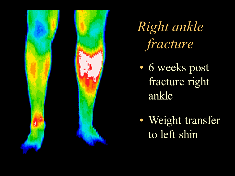 27 Rt. Ankle Fracture