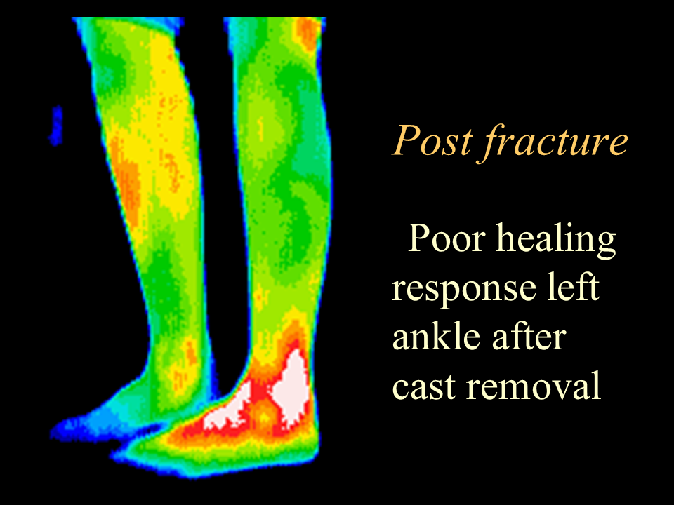 30 Post ankle cast