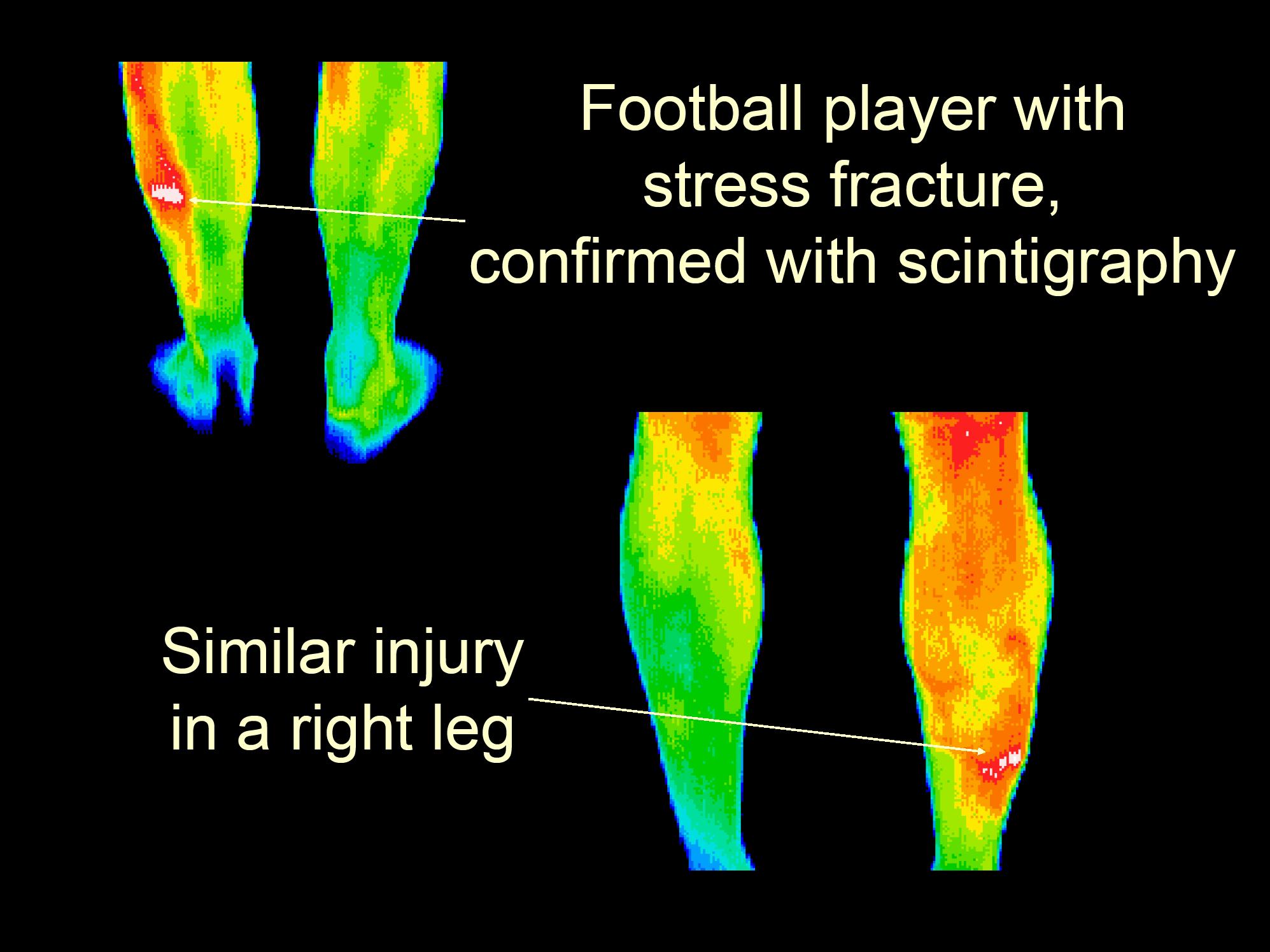 31 Football stress fracture