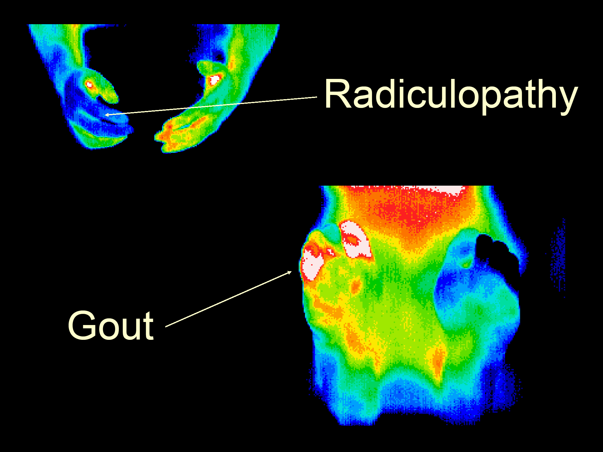 32 Gout, Radiculopathy