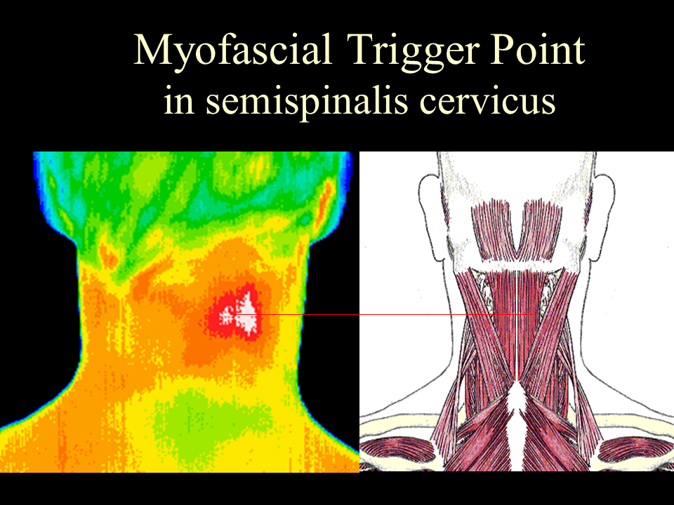 34 Neck trigger point