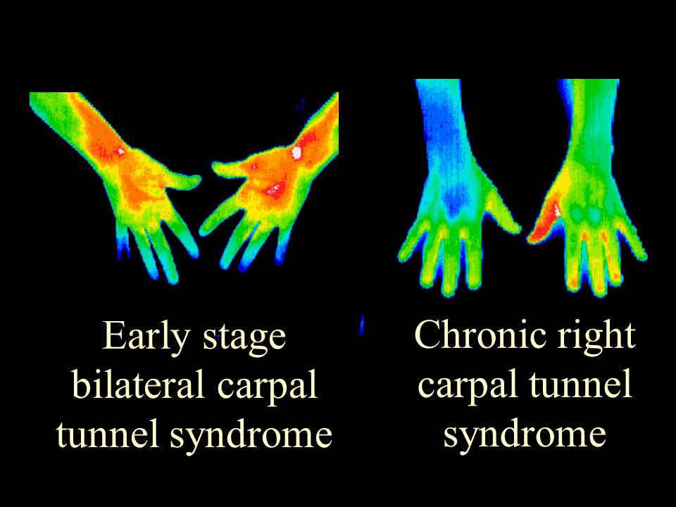 35 Carpal Tunnel