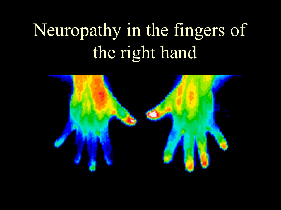 37 Neuropathy rt. fingers